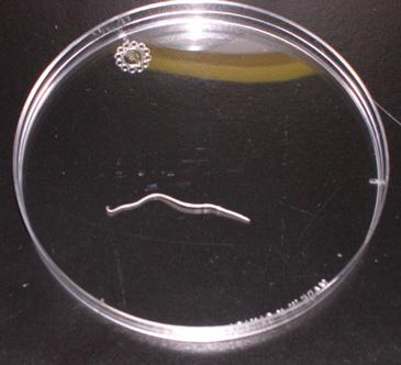 Parasitology: Helminth: Loa Loa