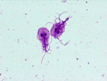 Parasitology: Protozoa: Giardia lamblia